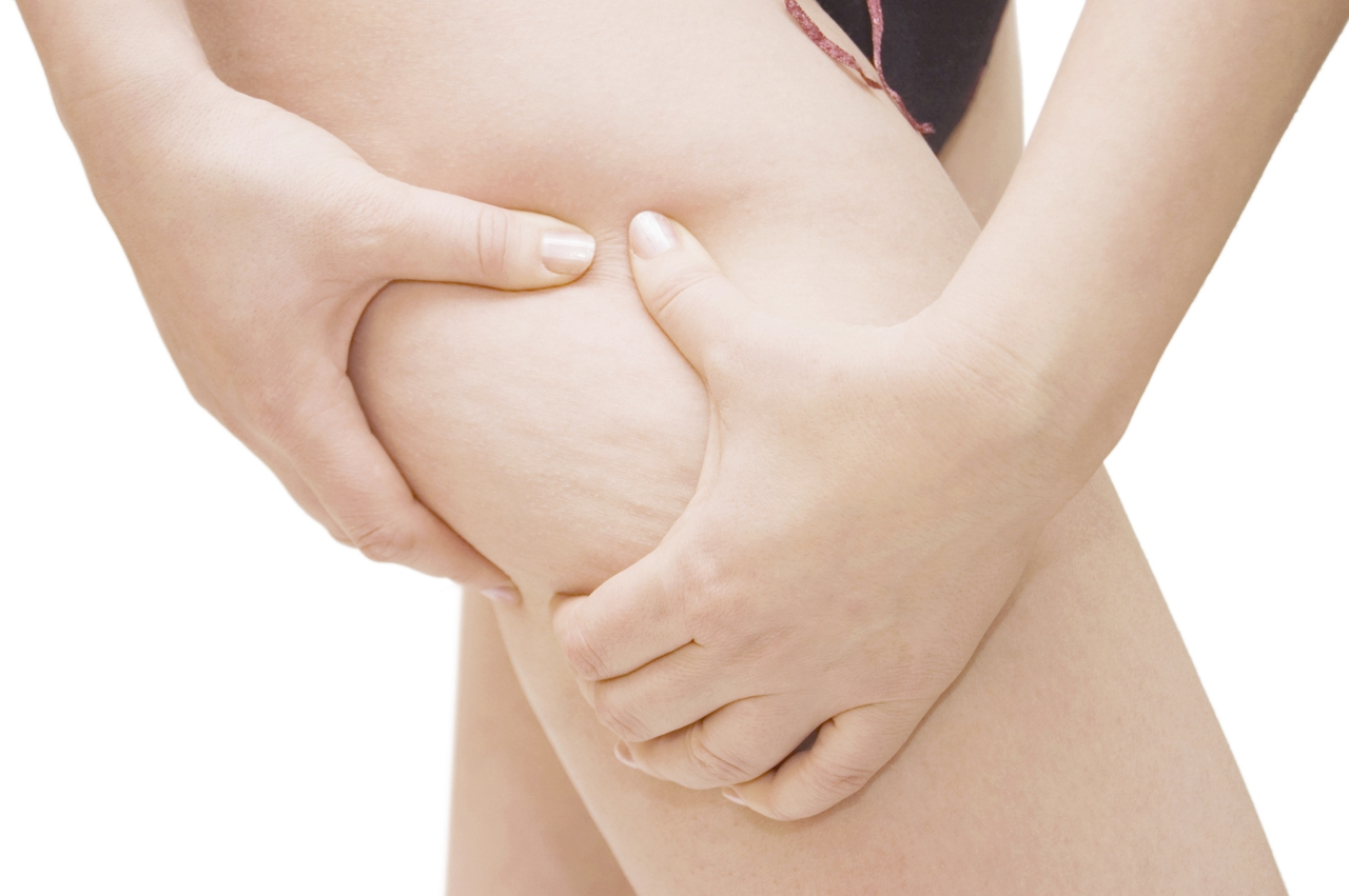 Clínicas para Tratamento Corporal para Celulite em Santo André - Tratamento Estético Corporal