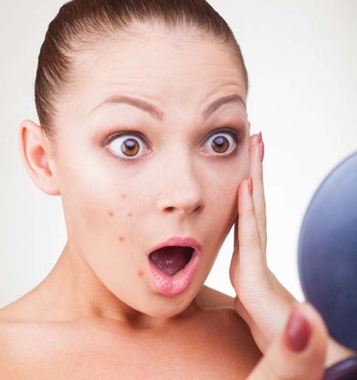 Clínicas para Tratamento Facial para Espinhas em São Bernardo do Campo - Tratamentos Faciais Estéticos