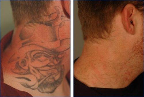 Remoção de Tatuagem em São Bernardo do Campo em Santo André - Remover Tatuagens
