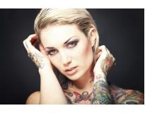 especialista em remoção de tatuagem em São Caetano do Sul