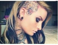 especialista em remoção de tatuagens preço em Santo André