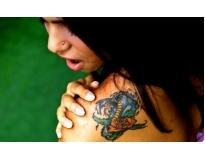 especialista em remoção de tatuagens em Santo André