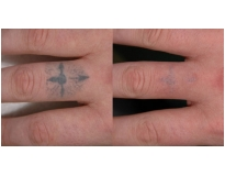 onde encontrar clareamento de tatuagem em Santo André