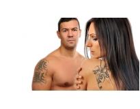 onde encontrar especialista em remoção de tatuagens em Santo André