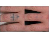 onde encontrar remoção de tatuagem a laser em Santo André