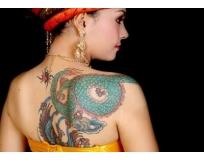 onde encontrar remoção de tatuagem definitiva em Santo André