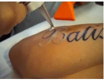 onde encontrar remoção de tatuagens em sp em São Bernardo do Campo