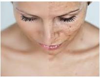orçamento para tratamento facial para manchas em Santo André