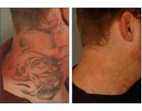 remoção de tatuagem a laser em Santo André