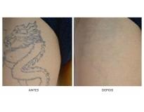 remoção de tatuagens a laser em Santo André