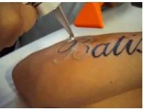 Clínica de Remoção de Tatuagem