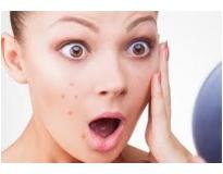 tratamento facial para acne em Santo André