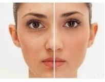tratamento facial para manchas em São Bernardo do Campo