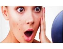 tratamentos faciais para espinhas em Santo André
