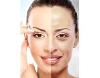 tratamentos faciais para manchas em Santo André