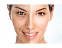 Tratamento Facial para Flacidez