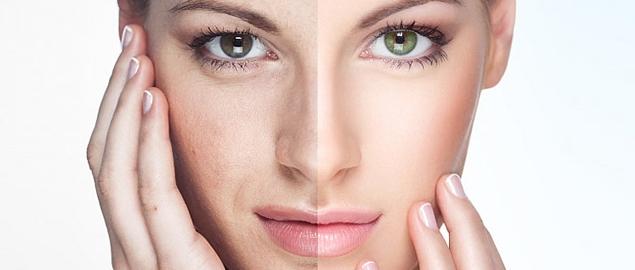 Tratamento Facial para Acne Preço em Santo André - Tratamento Facial para Acne