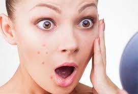 Tratamento Facial para Acne em São Caetano do Sul - Clínica de Tratamento Facial
