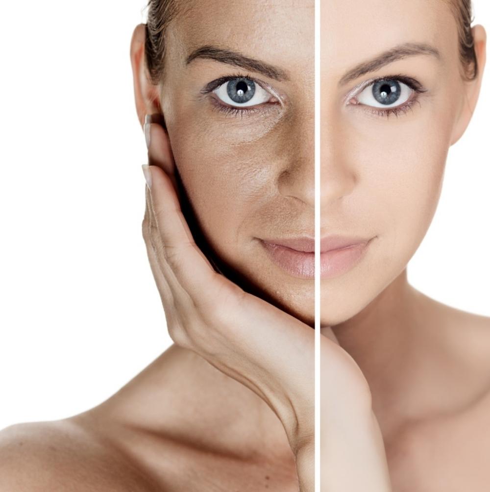 Tratamentos Faciais Estéticos em Santo André - Tratamento Facial
