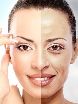 Tratamentos Faciais para Manchas em Santo André - Clínica de Tratamento Facial